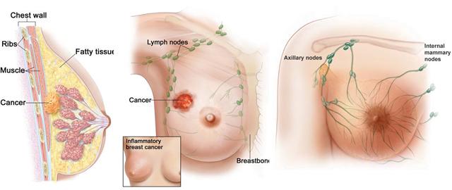 Ciri-ciri-Kanker-payudara